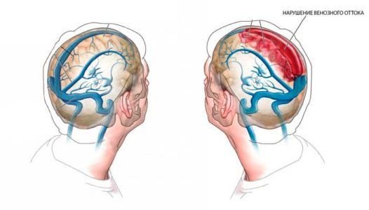 Стадии нарушения венозного оттока
