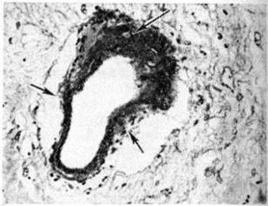 Виды глиоза головного мозга
