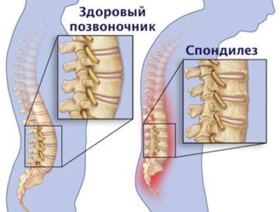 Болезни, провоцирующие боли в шее и затылке