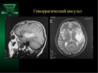 Геморрагический инсульт у мужчин