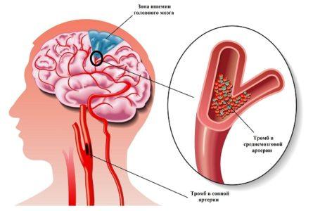 Характеристика ишемии головного мозга