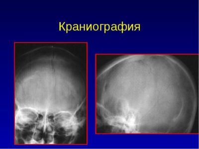 Характеристика косвенных диагностических мероприятий