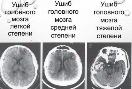 Классификация контузии головного мозга
