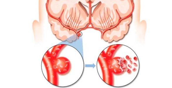 Классификация кровоизлияния в мозг