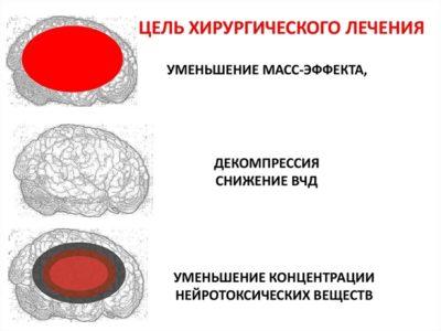 Лечение отечности головного мозга хирургическим методом