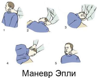 Маневр Эпли