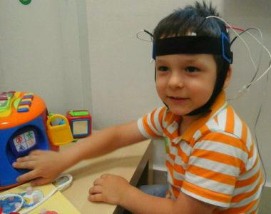 Методика проведения микрополяризации головного мозга детям