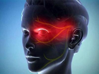 Мигрень как причина боли во лбу