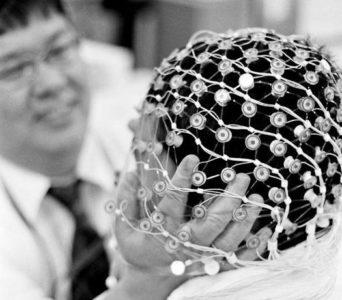 Микрополяризация головного мозга детям — насколько эффективна процедура?