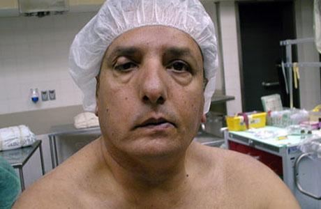 Осложнения после кровоизлияния в мозг