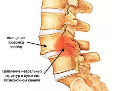 Остеохондроз как причина боли в шее и затылке
