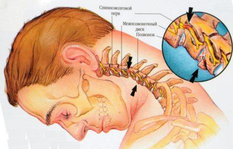 Остеохондроз как причина боли во лбу