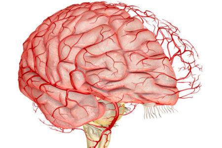 Проверка сосудов головного мозга