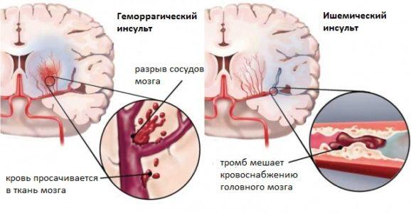 Разновидности инсульта