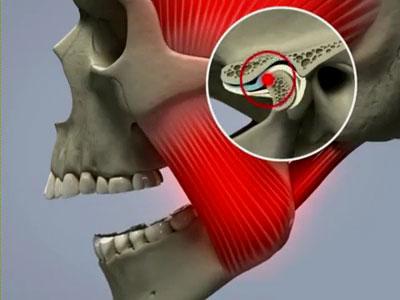 Синдром Костена как причина головной боли справа