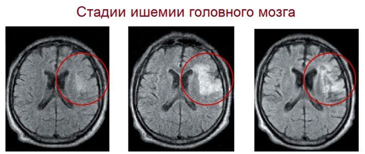 Стадии ишемии головного мозга