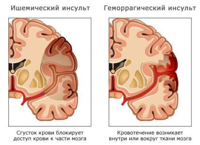 Виды инсульта у мужчин