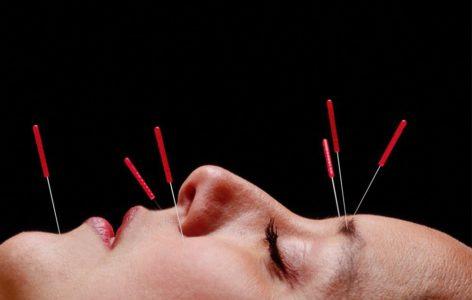 Физиотерапевтическое лечение невралгии тройничного нерва