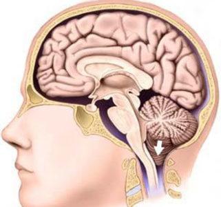 Киста прозрачной перегородки мозга
