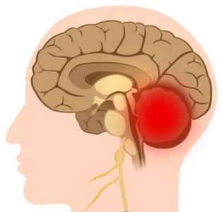 Кровоизлияние в мозжечок — как бороться с патологией?