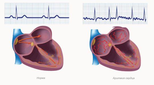 Причины вторичной гипотонии