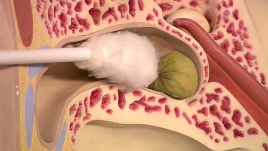Скопление серы как причина боли в ухе и голове