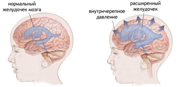 Виды гипертензии