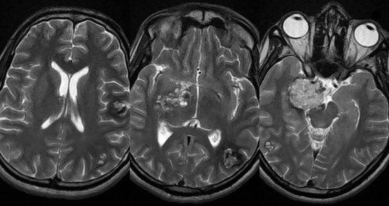 Дистрофические изменения головного мозга