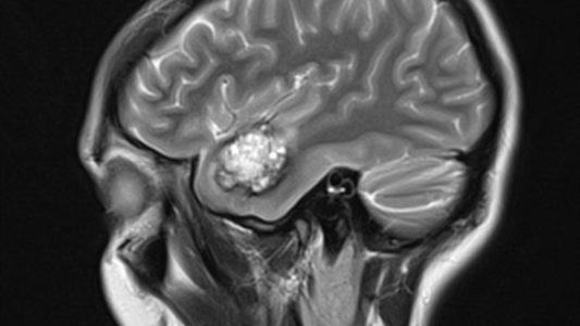 Опухолевые образования в головном мозге