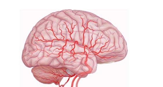 Типы заболеваний головного мозга